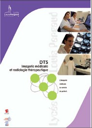Plaquette DTS IMRT
